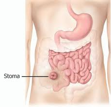 stoma body